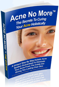 Acne Skin Care Treatment Product